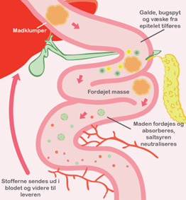 Galdesyremalabsorption